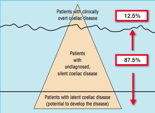 Graphic depicting incidence of undiagnosed celiac disease